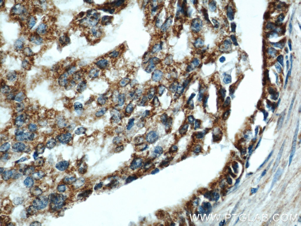 COXIV IHC 11242-1-AP COXIV Antibody  COX IV 1, COX4, COX4I1, COXIV, Cytochrome c oxidase polypeptide IV, Cytochrome c oxidase subunit 4 isoform 1 mitochondrial;IHC