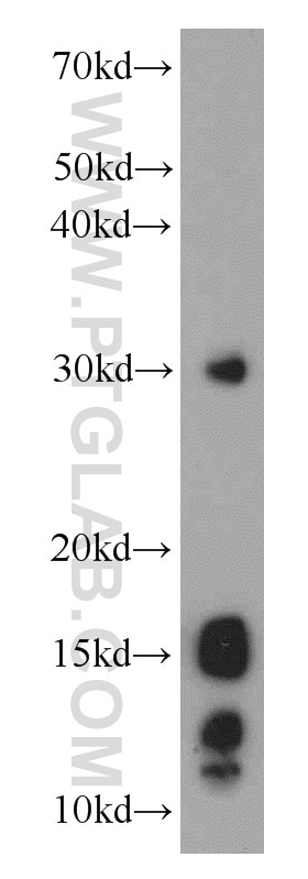 COXIV WB 11242-1-AP COXIV Antibody  COX IV 1, COX4, COX4I1, COXIV, Cytochrome c oxidase polypeptide IV, Cytochrome c oxidase subunit 4 isoform 1 mitochondrial;WB