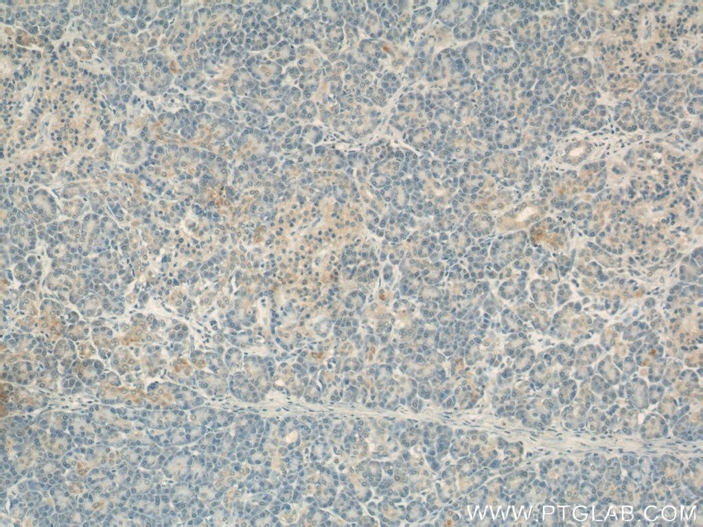 60251-1-Ig;human pancreas tissue