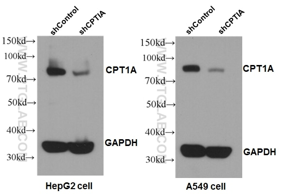 WB analysis of A549 cells using 15184-1-AP