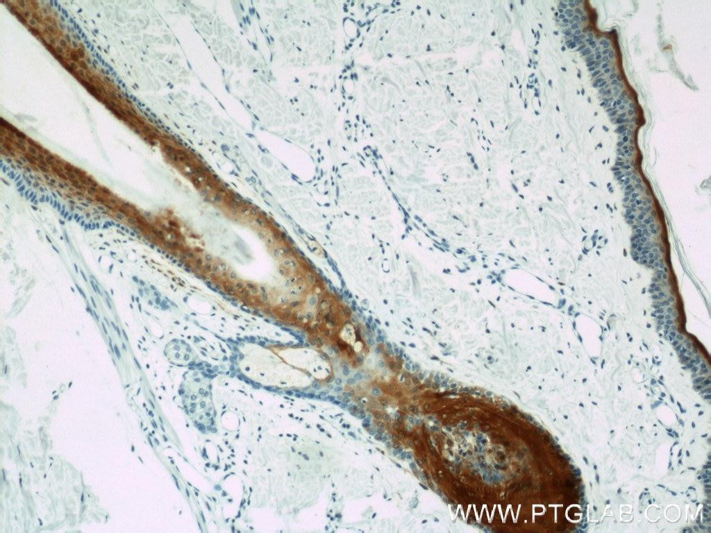 IHC staining of human skin using 10225-1-AP