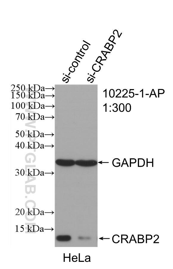 WB analysis of HeLa using 10225-1-AP