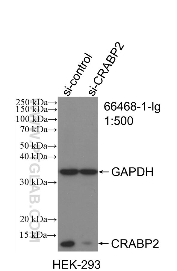 WB analysis of HEK-293 using 66468-1-Ig