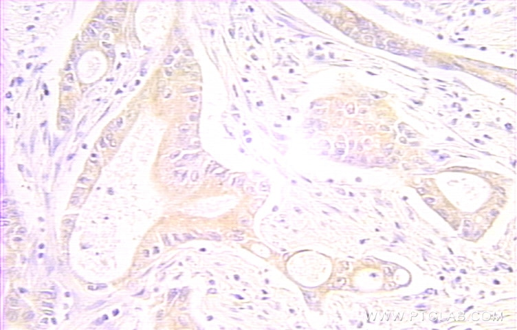 IHC staining of human colon cancer using 10401-1-AP