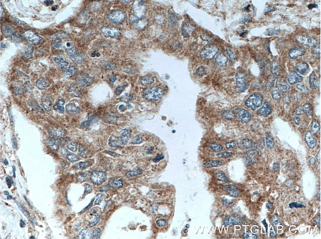 IHC staining of human pancreas cancer using 10944-1-AP