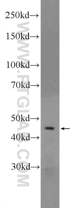 CRHR1 Polyclonal antibody