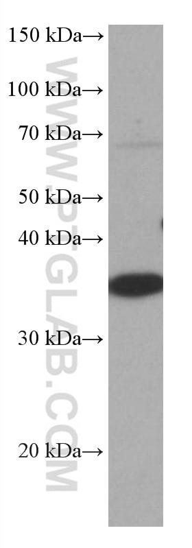 WB analysis of HEK-293 using 67035-1-Ig