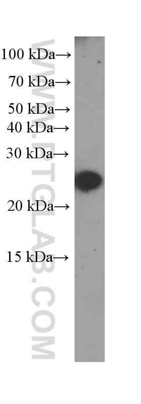 WB analysis of serum from mouse injected with bacteria using 66250-1-Ig