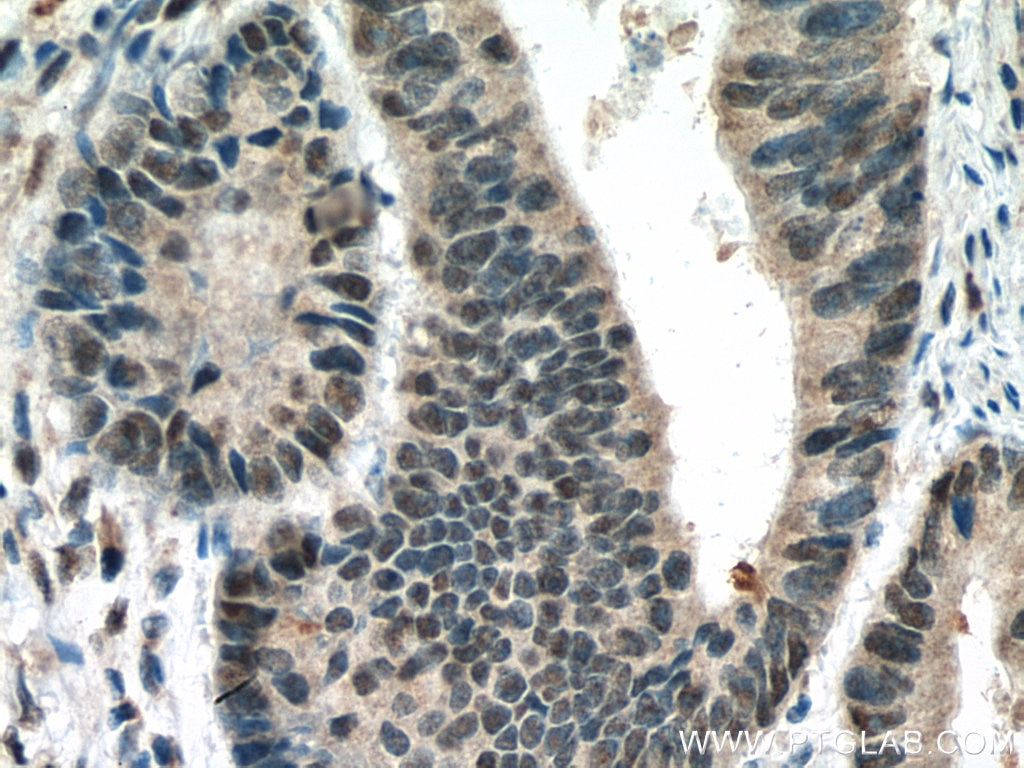 IHC staining of human colon cancer using 10441-1-AP