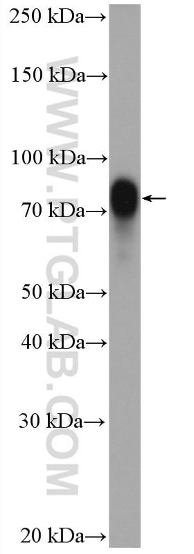 WB analysis of Neuro-2a using 27647-1-AP