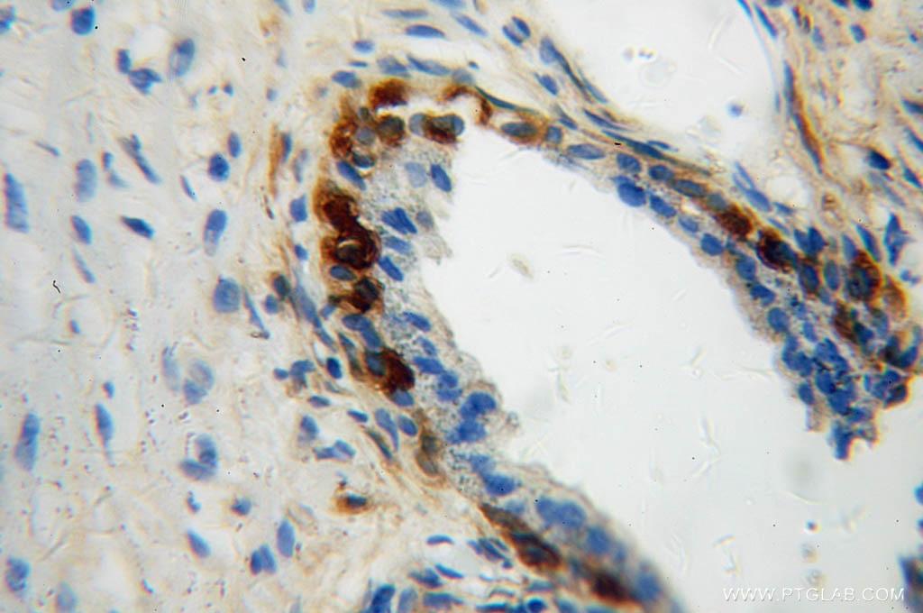 IHC staining of human gliomas using 12495-1-AP