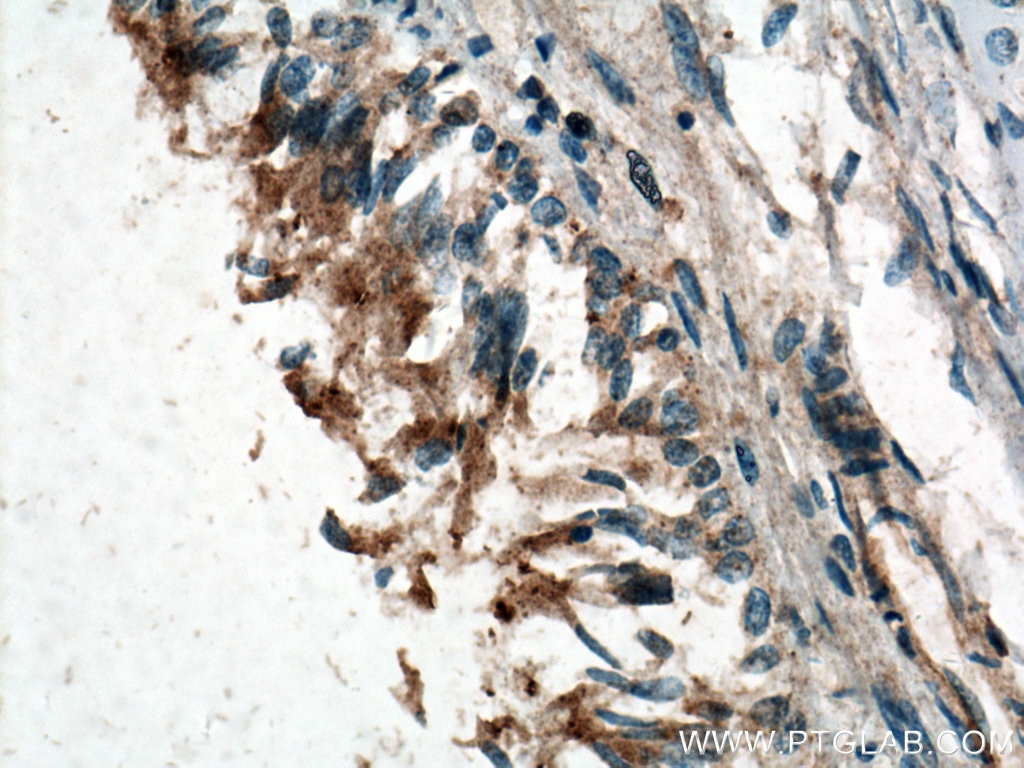 IHC staining of human lung using 17762-1-AP