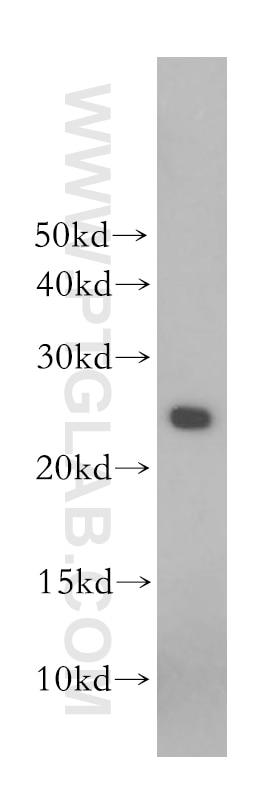 WB analysis of human placenta using 10178-1-AP