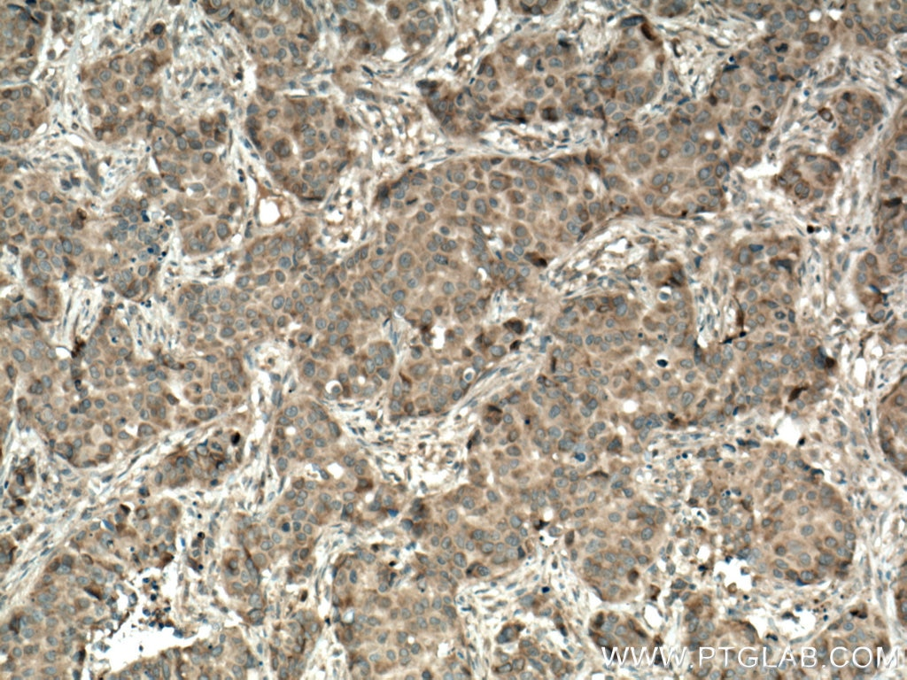 IHC staining of human breast cancer using 55192-1-AP