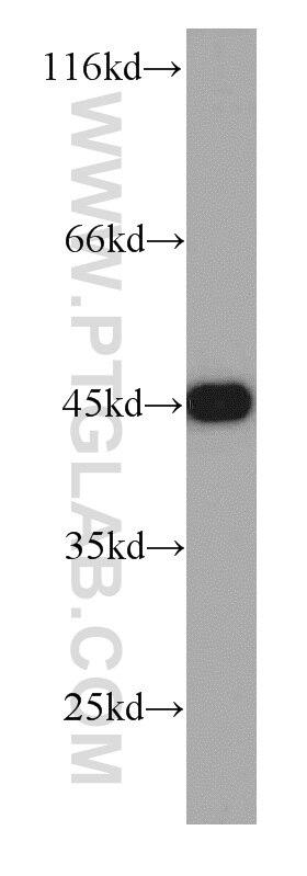 CSNK2A1 Polyclonal antibody