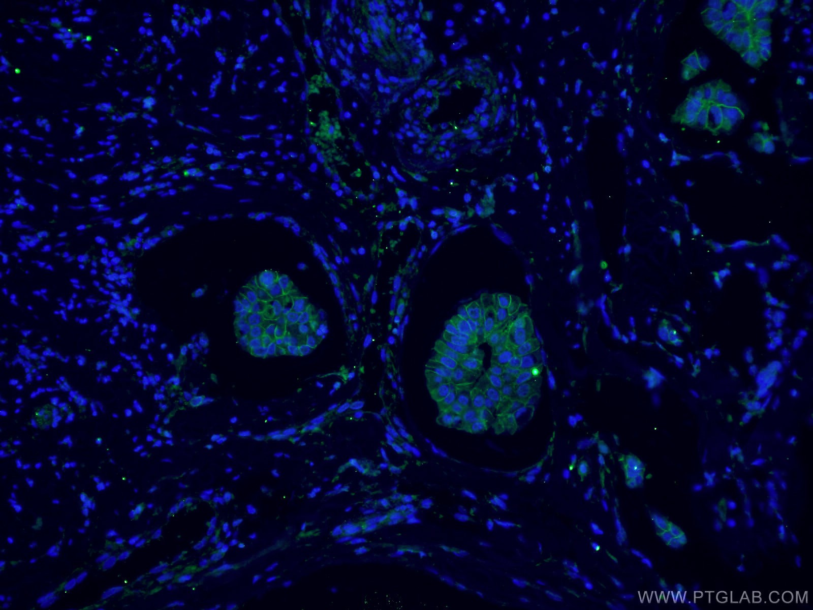 IF Staining of human breast cancer using 66208-1-Ig
