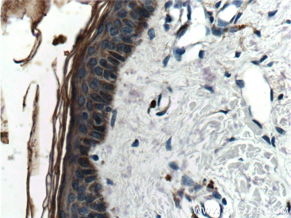 IHC staining of human skin using 10938-1-AP