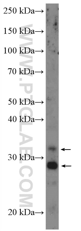 WB analysis of A549 using 10938-1-AP