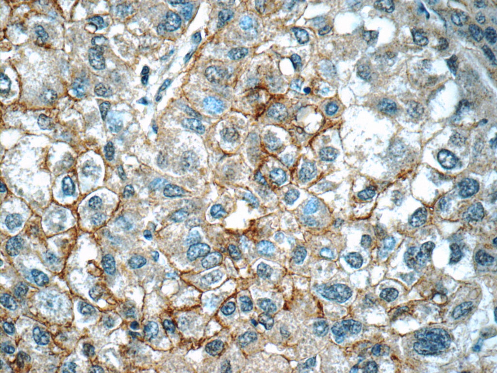 IHC staining of human liver cancer using 14851-1-AP