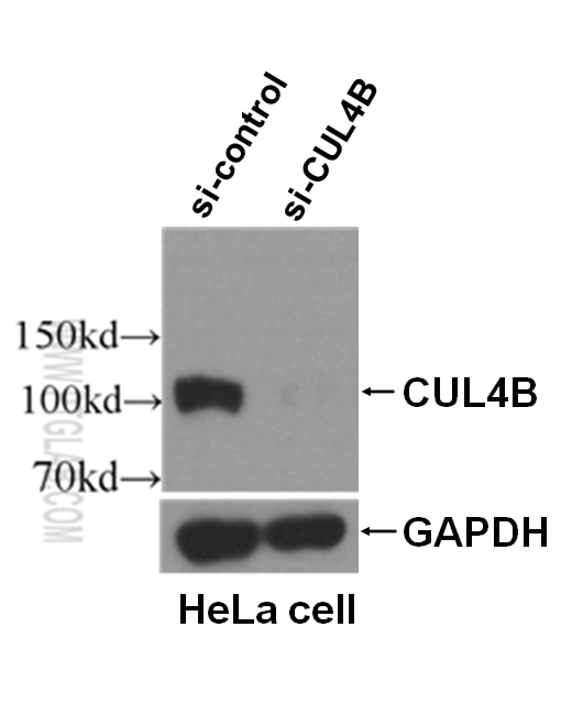 WB analysis of HeLa cells using 20882-1-AP