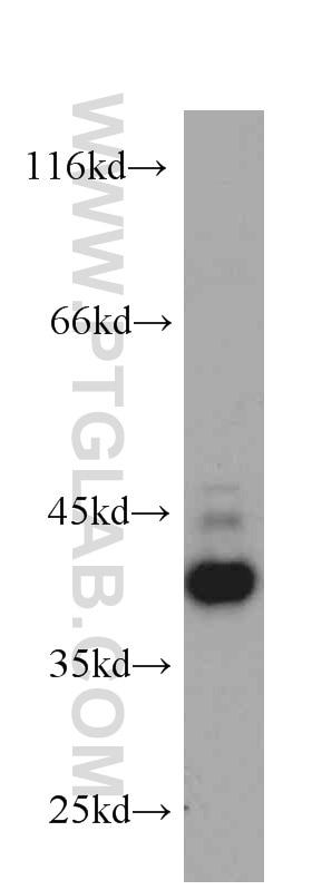 CXCR3B-specific