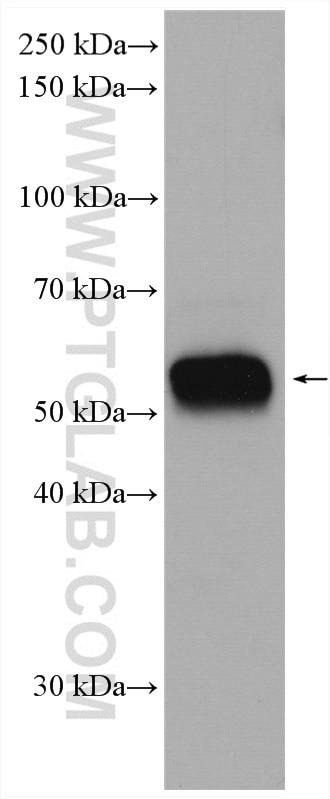 WB analysis of mouse spleen using 19013-1-AP