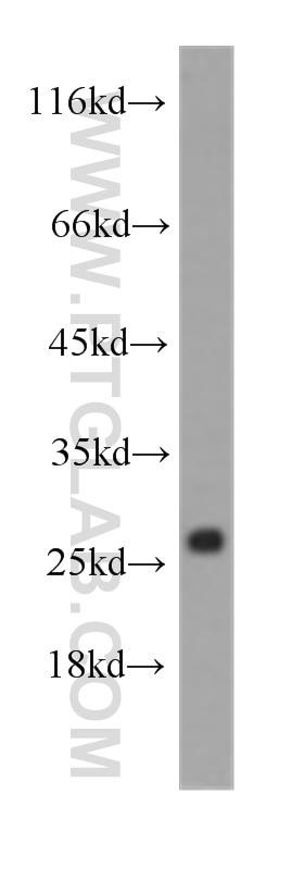 WB analysis of human heart using 60228-1-Ig