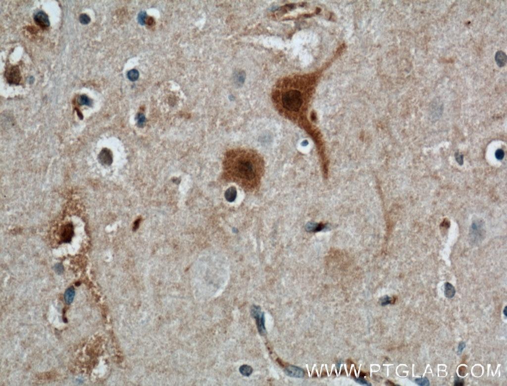 IHC staining of human brain using 66394-1-Ig