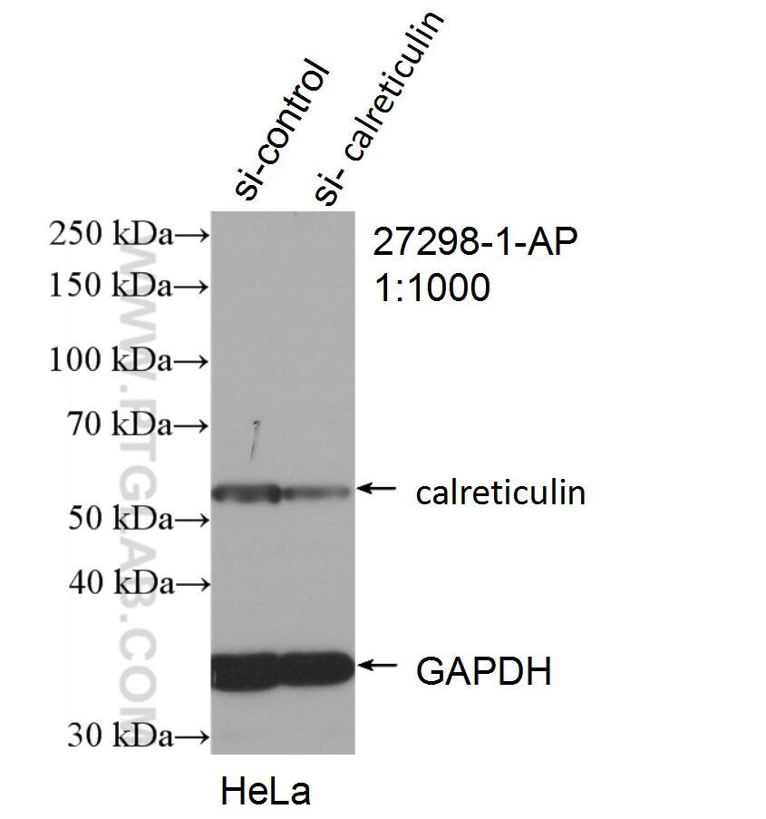 WB analysis of HeLa using 27298-1-AP