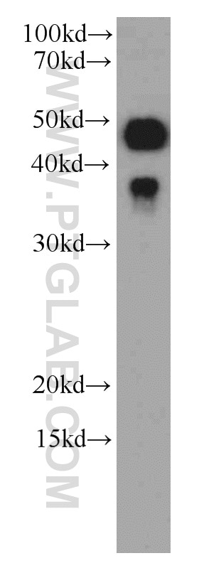 WB analysis of HeLa using 66169-1-Ig