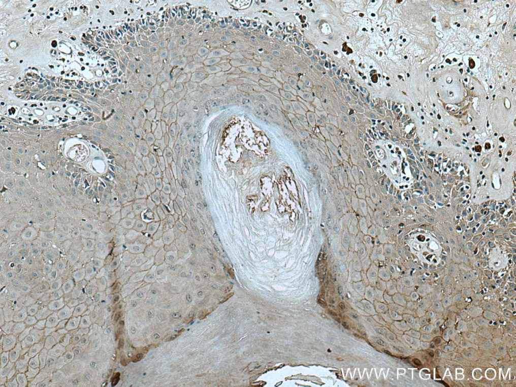 IHC staining of human skin cancer using 28674-1-AP