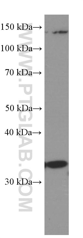 WB analysis of Raji using 66357-1-Ig