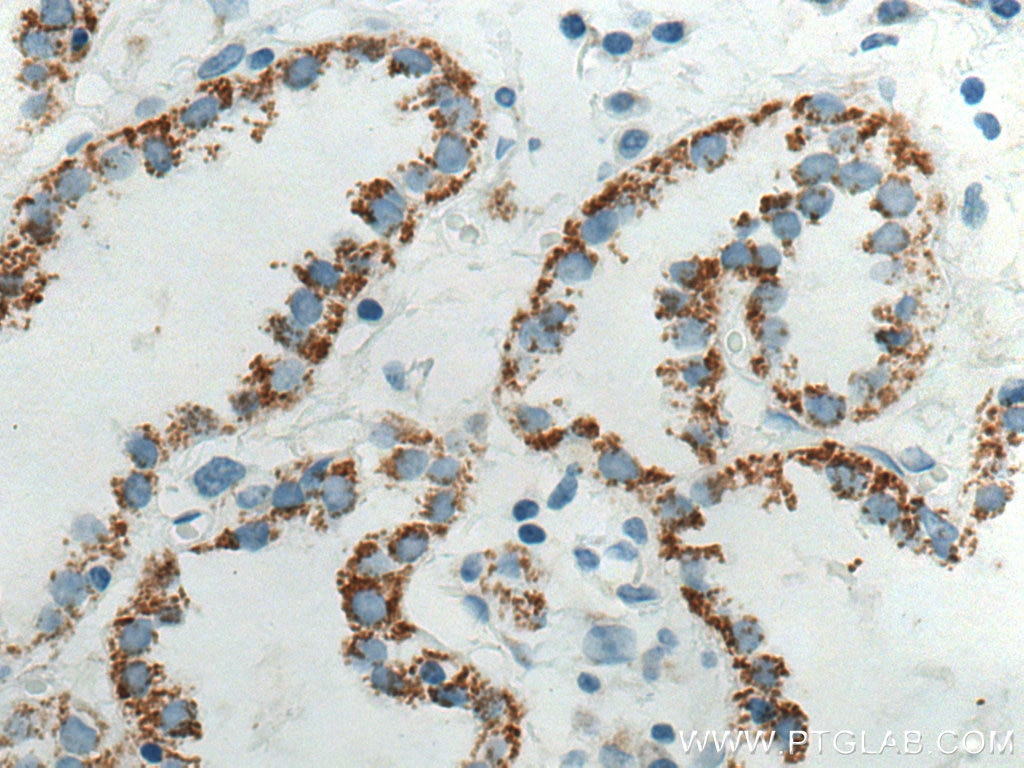 IHC staining of human lung cancer using Biotin-66483