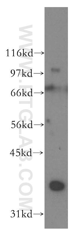 WB analysis of mouse testis using 12633-1-AP