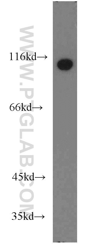 WB analysis of HeLa using 10260-1-AP