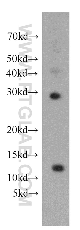 WB analysis of HepG2 using 14995-1-AP