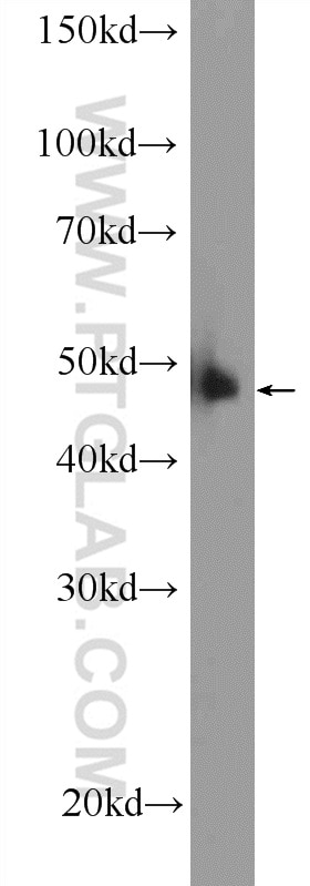 WB analysis of HeLa using 10431-1-AP