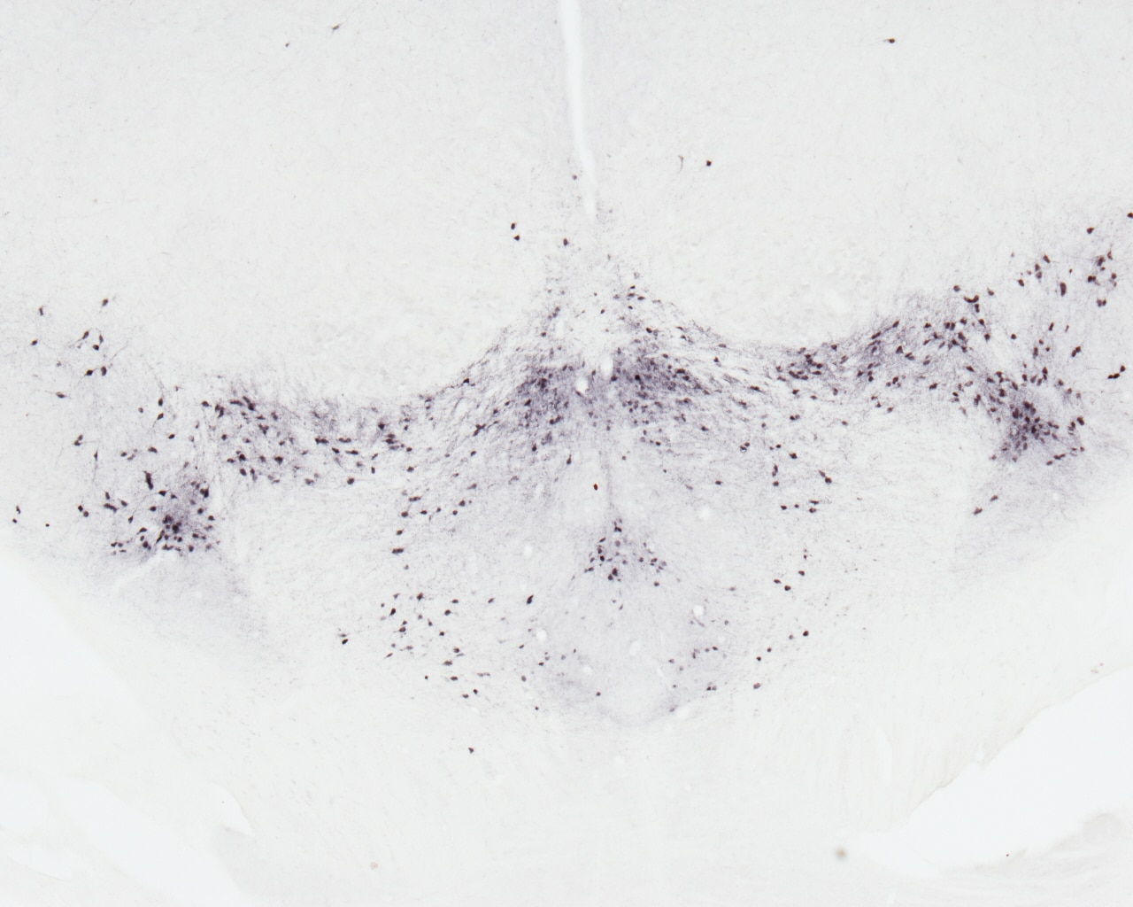 IHC staining of mouse brain using 10166-1-AP