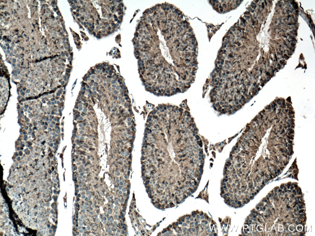 IHC staining of mouse testis using 14916-1-AP