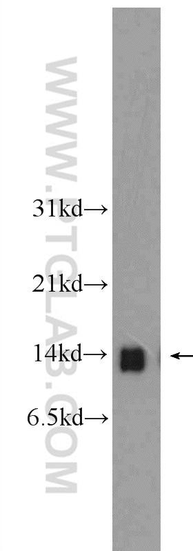 WB analysis of rat liver using 12389-1-AP