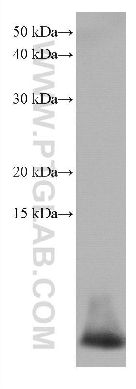 WB analysis of human peripheral blood leukocyte using 67156-1-Ig
