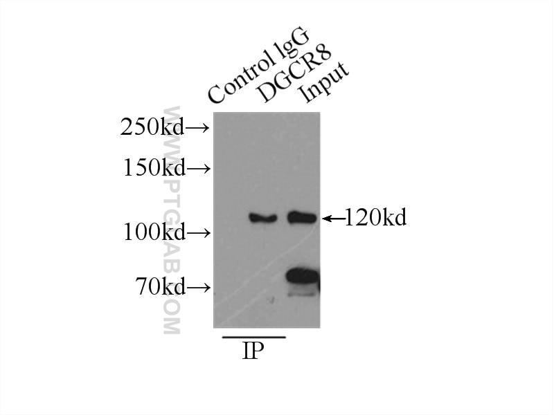 IP experiment of HEK-293 using 10996-1-AP