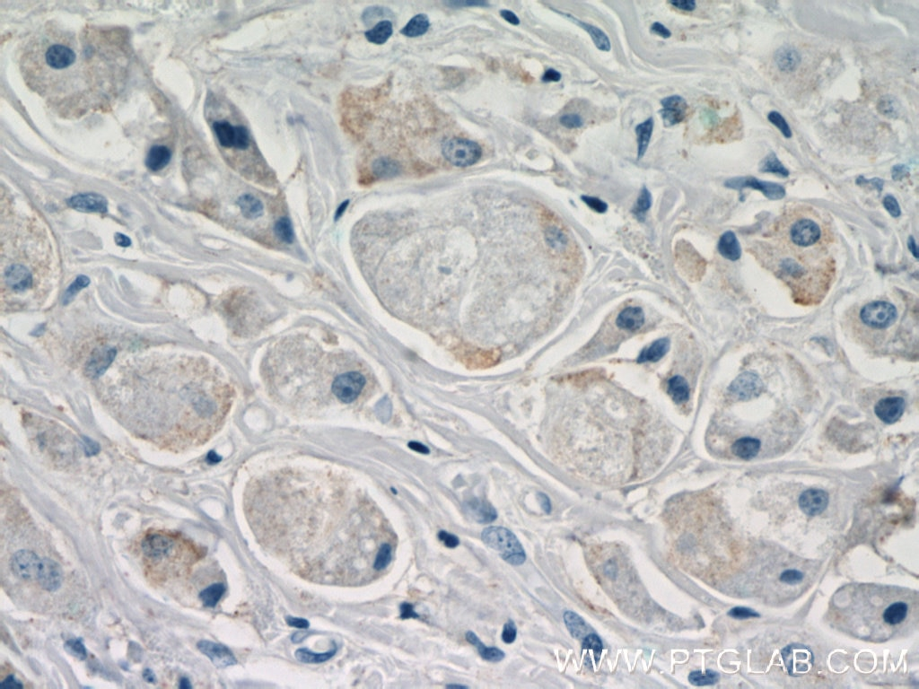 20172-1-AP;human breast cancer tissue