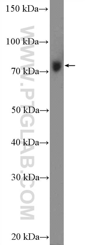 WB analysis of HEK-293 using 11355-1-AP