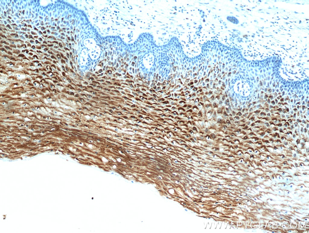 IHC staining of human cervix using 21051-1-AP