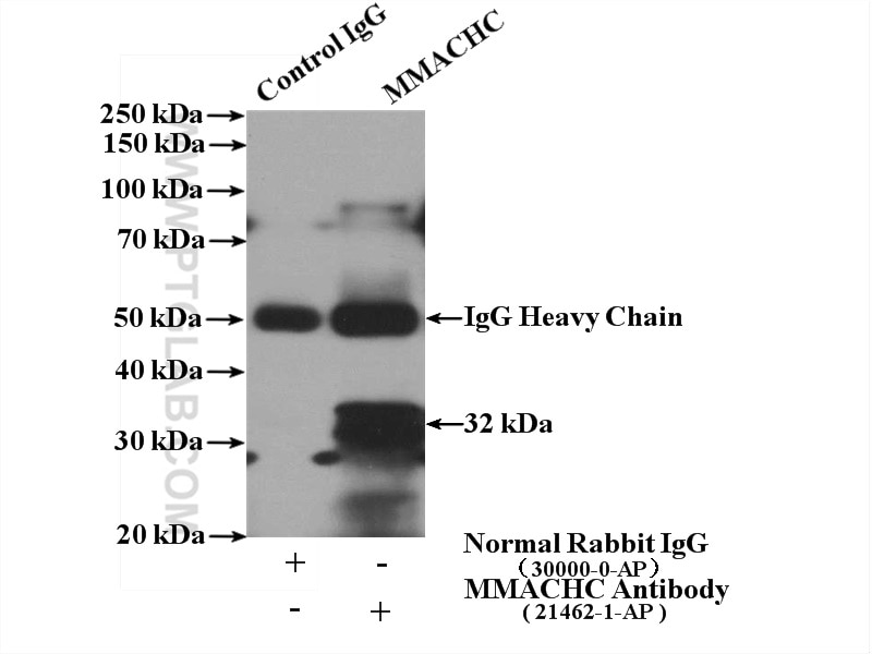 IP experiment of mouse skeletal muscle using 21051-1-AP