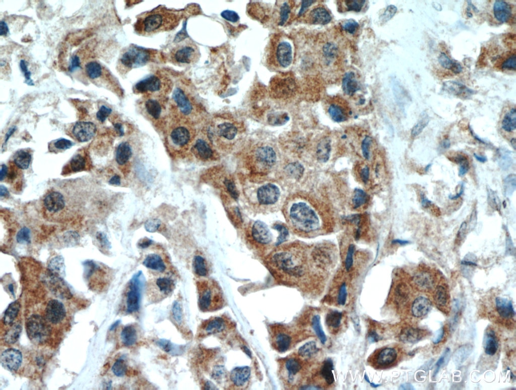 IHC staining of human breast cancer using 10636-1-AP