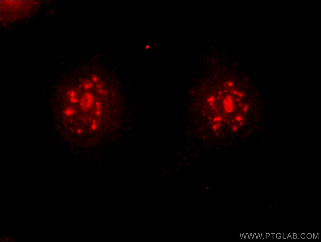 IF Staining of HeLa using 13714-1-AP