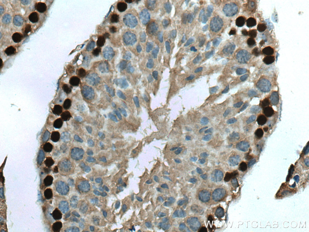 IHC staining of mouse testis using 67176-1-Ig