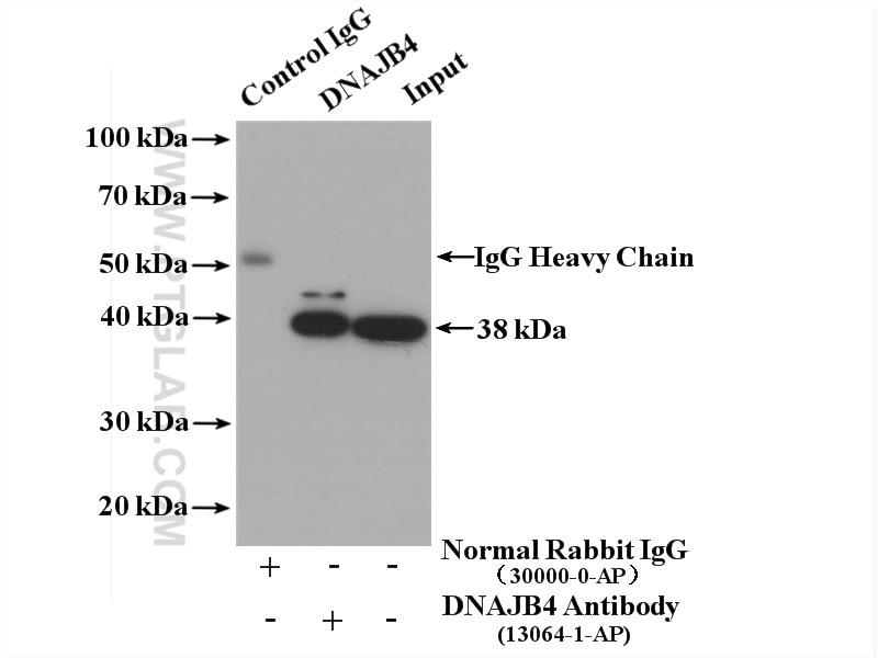 IP experiment of HeLa using 13064-1-AP